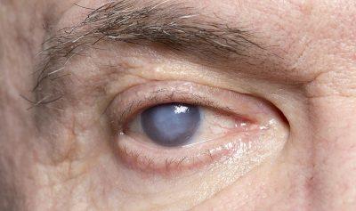 مضاعفات مرض السكر على العين