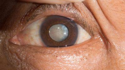 خطورة المياه البيضاء على العين