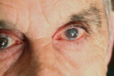 تكلفة حقن العين لعلاج الارتشاح