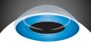 Intracorneal Rings And Corneal Cross Linking For Keratoconus