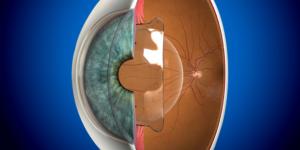 Phakic Intra-Ocular Lenses